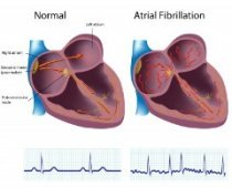 AFIB is different from whats normal heart rate variability
