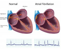 Heart with Artrial Fibrillation compared to normal heart